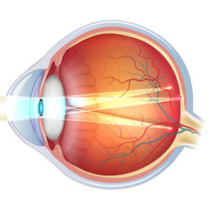Astigmatism eye defect